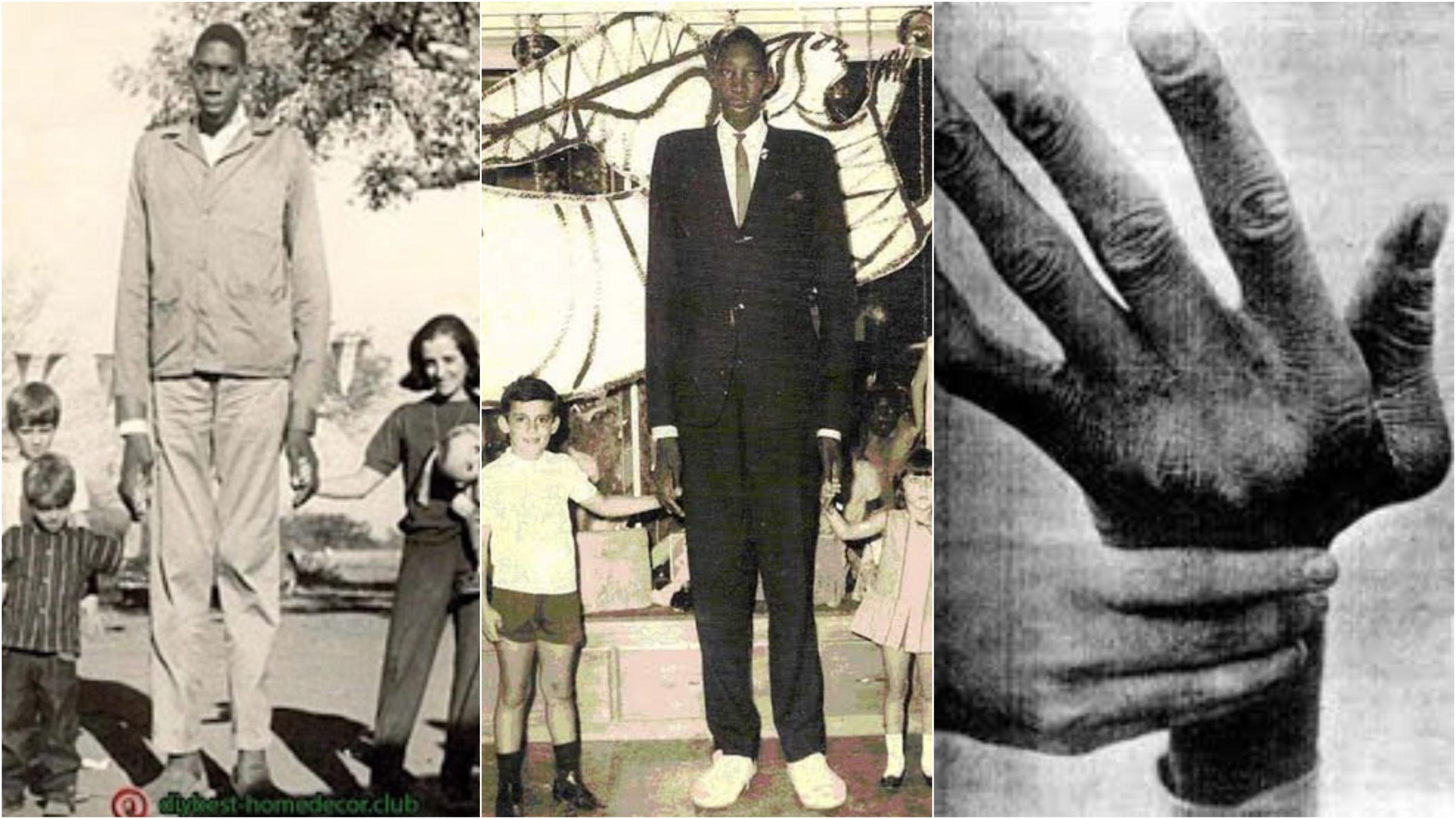 The tallest African descent in the recorded history. John Rogan 8 ft 9 in (2m 67cm)